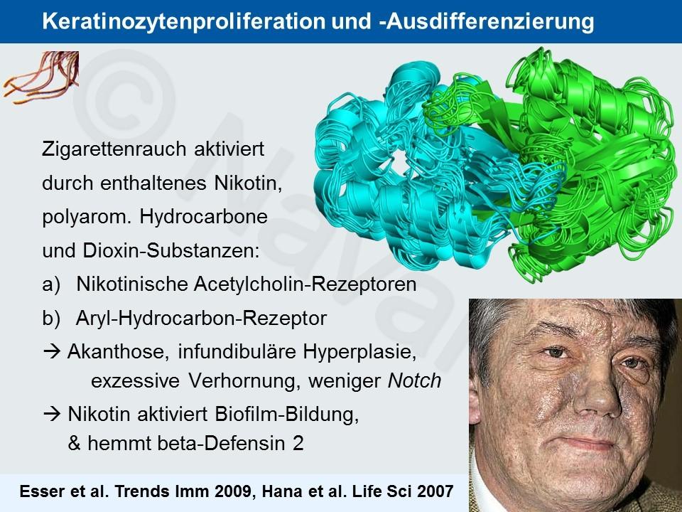 Hidradenitis suppurativa: Epidemiologie & Pathogenese | Prof ...